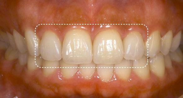 本物の歯にもっとも近いかぶせ物 オールセラミック
