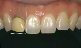 一般的なかぶせ物(前歯)