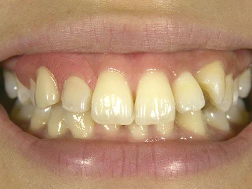 金属バネがない部分入れ歯