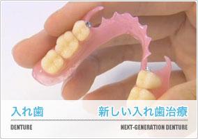 新しい入れ歯治療
