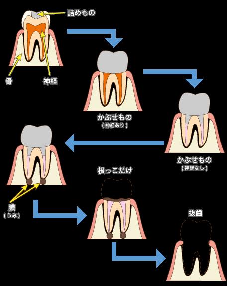 一度治療した歯は抜歯になりやすい